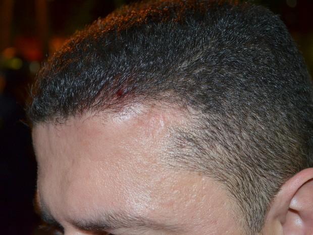 Guarda Civil ficou ferido durante confronto com manifestantes em Piracicaba (Foto: Leon Botão/G1)