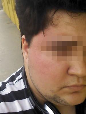 Jovem de 21 anos foi vítima de homofobia (Foto: Arquivo Pessoal)