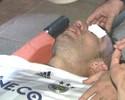 Van Persie sofre séria lesão no olho em vitória do Fenerbahçe; assista