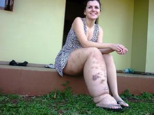 Paula Eckhardt doença rara santa clara do sul (Foto: Arquivo Pessoal)