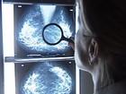 Cientistas americanos sugerem mudanças na definição de câncer