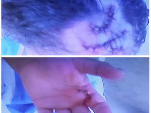 Criança de 5 anos foi atacada na mão e na cabeça (Foto: Reprodução / Inter TV)