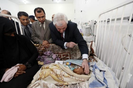 Stephen O'Brien, diretor de operações humanitárias da ONU, em visita a hospital em Sanaa, no Iêmen (Foto: Mohammed Huwais/AFP)