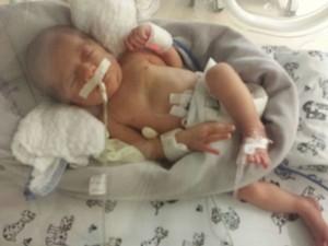 Recém-nascido ainda está na UTI, mas passa bem (Foto: Divulgação)