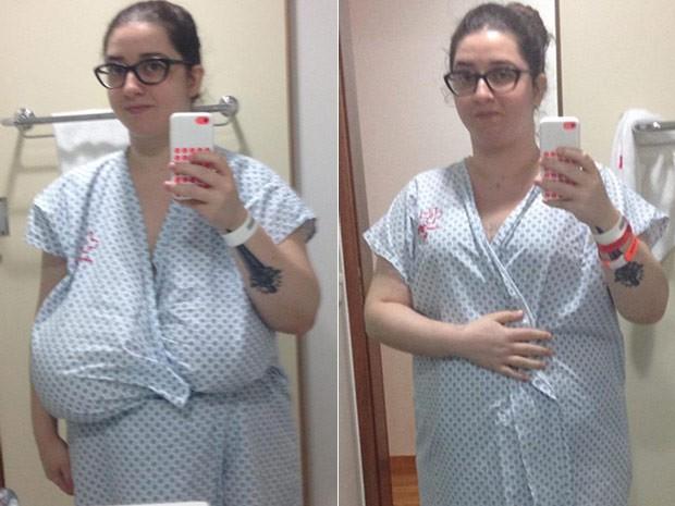 A jornalista Bruna Presmic antes e depois da cirurgia de redução dos seios, quando foram retirados 6 kg (Foto: Bruna Presmic/Arquivo Pessoal)