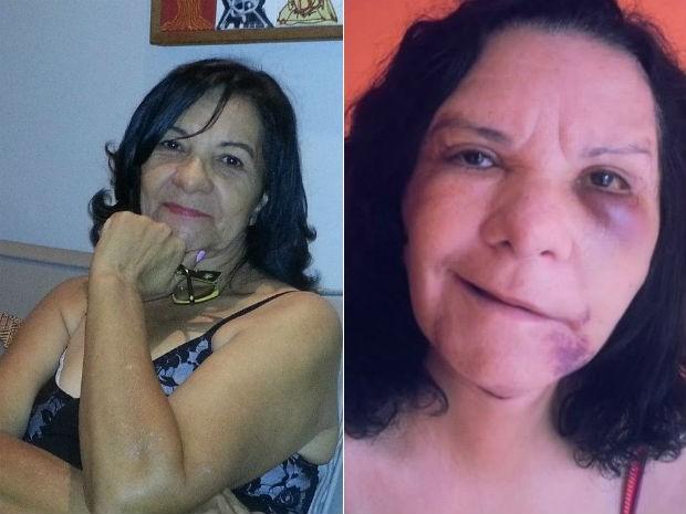 Edileuza Fabrini antes e depois da cirurgia (Foto: Edileuza Fabrini/Arquivo Pessoal)