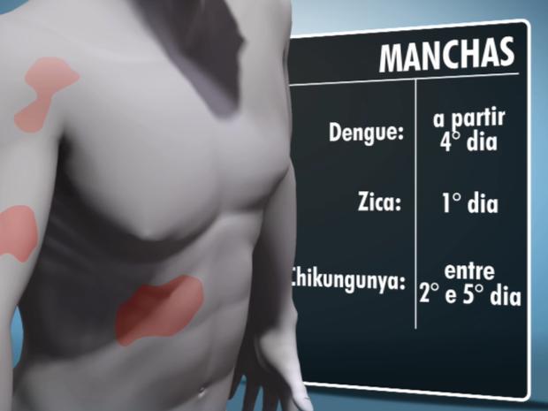 Sintomas de doenças transmitidas pelo mosquito Aedes Aegypti  (Foto: Reprodução/ EPTV)
