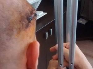 Comerciante de Cubatão, SP, levou um tiro de raspão na lateral da cabeça (Foto: Cássio Lyra/G1)