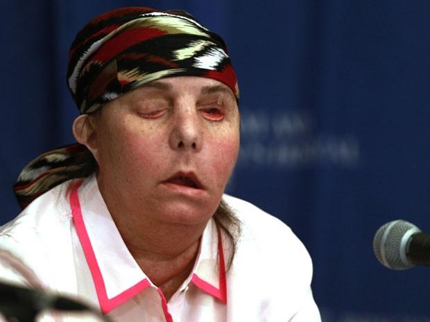 A americana Carmen Blandin Tarleton após transplante de rosto (Foto: Charles Krupa/AP Photo)