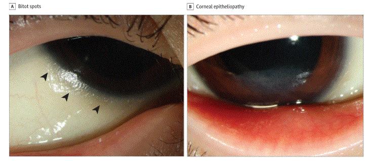 Olho do menino antes do tratamento (Foto: Reprodução/JAMA Pediatrics)