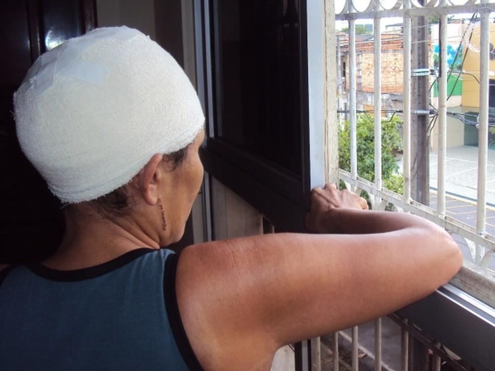 Vítimas enfrentam problemas de inserção no mercado de trabalho por causa das sequelas do escalpelamento (Foto: Glauce Monteiro)