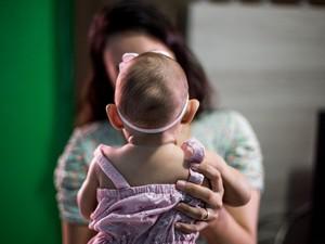 Ministério da Saúde pode mudar critérios para triagem de bebês com problemas relacionados ao vírusda zika: 20% têm cabeça de tamanho normal  (Foto: Jonathan Lins/G1)