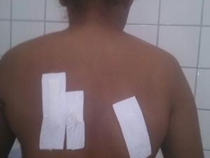 mulher, facada, costas, braço, costela, violência, violência contra a mulher, Macapá, Amapá (Foto: Joicelane Pereira / Arquivo Pessoal)