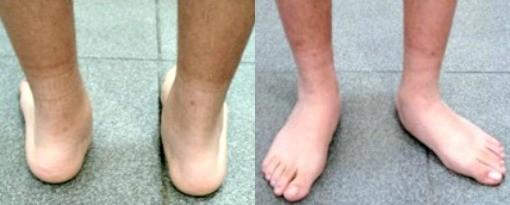 Pisada para dentro pode causar entorses de tornozelo