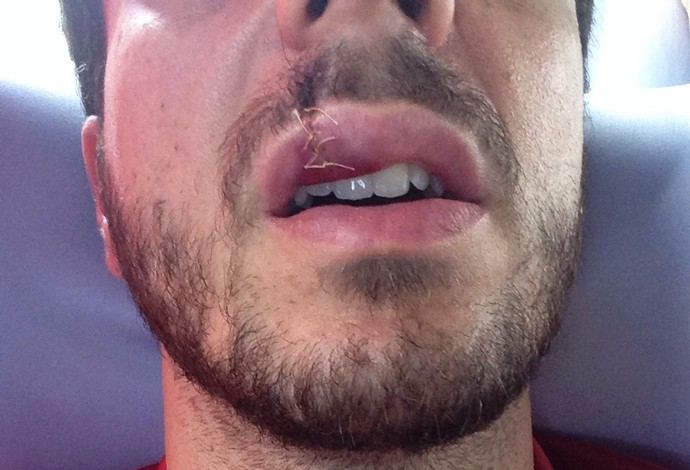 Ao todo, o jogador recebeu 14 pontos e todo o rosto (Foto: Arquivo pessoal)