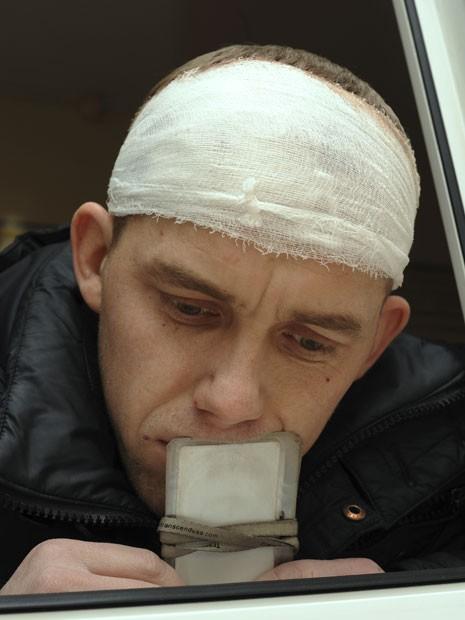 O russo Alexander Babin, que segue internado neste sábado no Hospital Regional de Cheliabinsk após ficar ferido em decorrência da queda de meteoro (Foto: Boris Kaulin/AP)