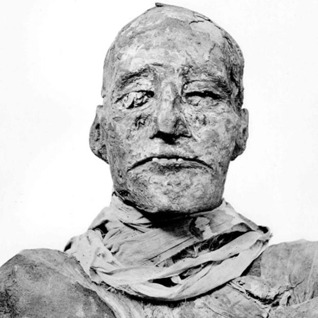 """Múmia do faraó egípcio Ramsés III (Foto: Reprodução/""""British Medical Journal"""")"""
