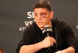 Nick Diaz passou em dois exames antidoping e falhou em um no UFC 183