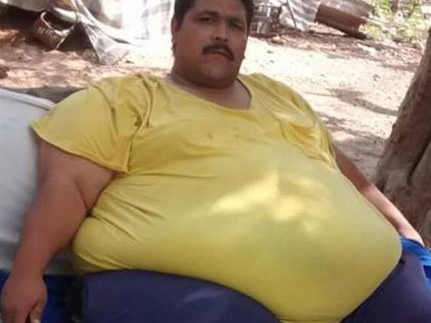 Andrés Moreno chegou a pesar 444 quilos antes de cirurgia (Foto: Reprodução/Facebook/Andres Moreno)