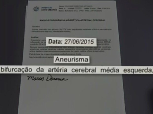 Aneurisma foi diagnosticado em 2015 (Foto: Reprodução / Jornal Nacional)