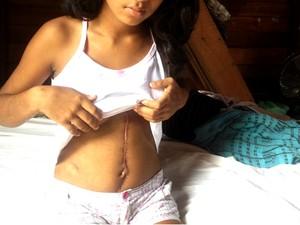 Adolescente passou por cirurgia para reparar lesões causadas no crime (Foto: Abinoan Santiago/G1)