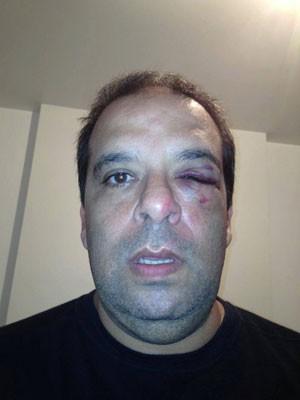 Marco foi atingido por uma bala de borracha durante manifestação (Foto: Arquivo Pessoal)