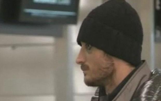 Riera, do Galatasaray, com olho roxo após briga com Felipe Melo (Foto: Reprodução/Youtube)