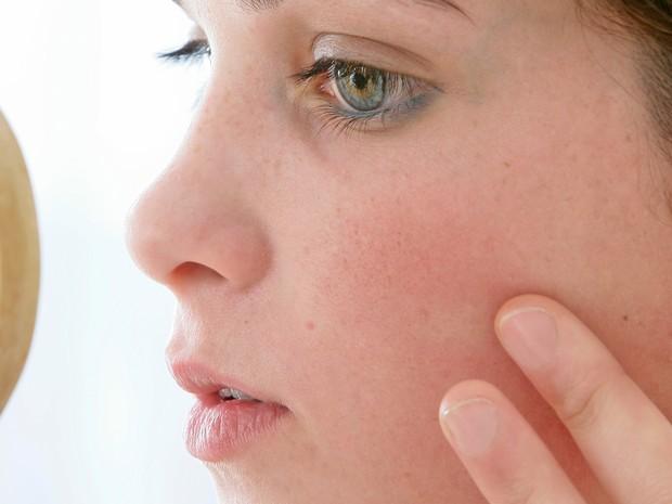 Bem Estar Interatividade - Acne (Foto: CHASSENET / BSIP)