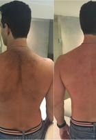 Iran Malfitano depila as costas com cera quente e diz: 'Dói demais, não dá'
