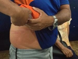 Presidente do Serra Talhada teria sido agredido por torcedores após jogo contra o Campinense pela Série D do Campeonato Brasileiro (Foto: André Vinícius/TV Asa Branca)
