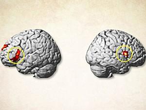 Cérebro (Foto: University College de Londres/PNAS/Divulgação)