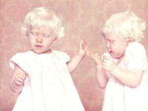 Albinos (Foto: Gustavo Lacerda)