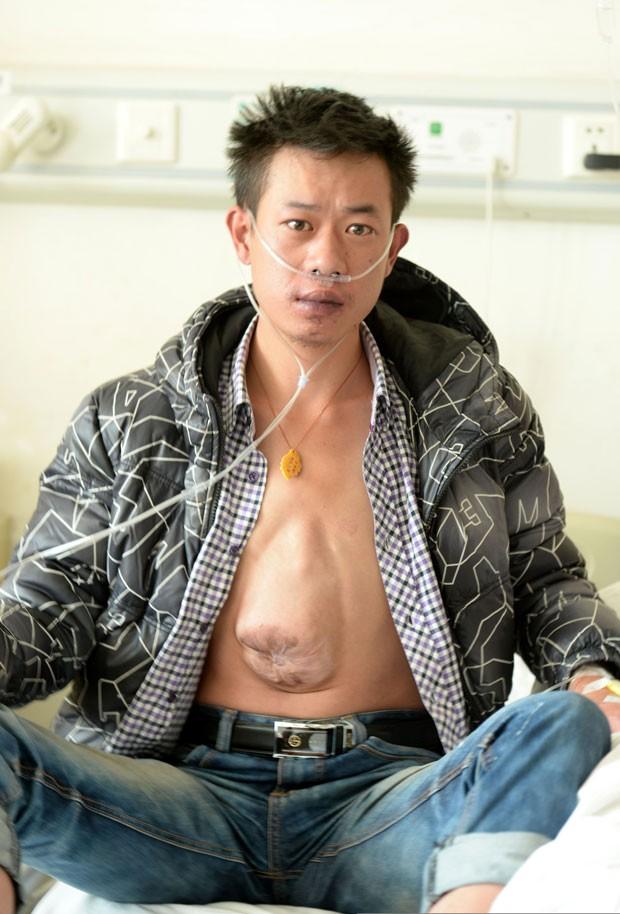 Chinês tem síndrome cardíaca (Foto: HAP/Quirky China News/REX)
