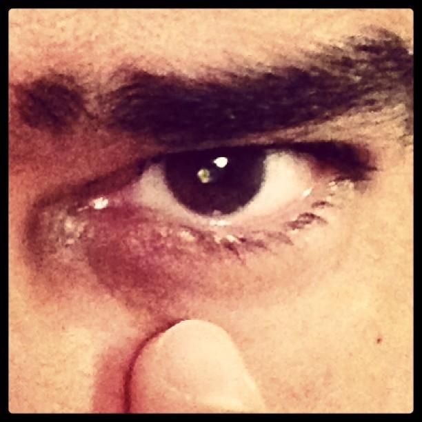Willian Bonner posta foto do olho operado (Foto: Instagram / Reprodução)