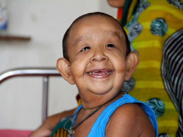 Menino de Bangladesh sofre de uma misteriosa doença que o faz parecer um velho  (Foto: STR / AFP)