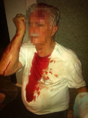 Idoso de 81 anos ficou com cortes nos braços e testa, além de hematoma no olho (Foto: Larissa Tescaro / Divulgação)