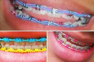 Aparelho irregular pode causar perda de dentes (Reprodução/Facebook/Aparelhos Diferenciados)