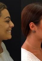 Monique Amin avalia mudanças no rosto ao longo dos anos: 'Mais feliz'