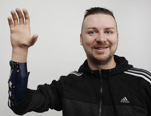 Paciente Milorad Marinkovic mostra sua mão biônica  (Foto: Dieter Nagl/AFP)