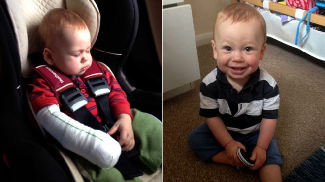 O pequeno Joshua, que sofreu uma queimadura no braço após um acidente com a chapinha da mãe (Foto: BBC)