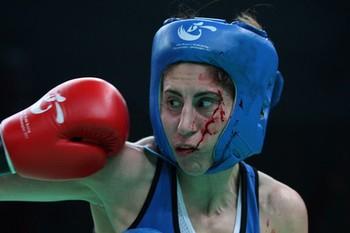 Boxe feminino - 2012 - sangue (Foto: Getty Images)