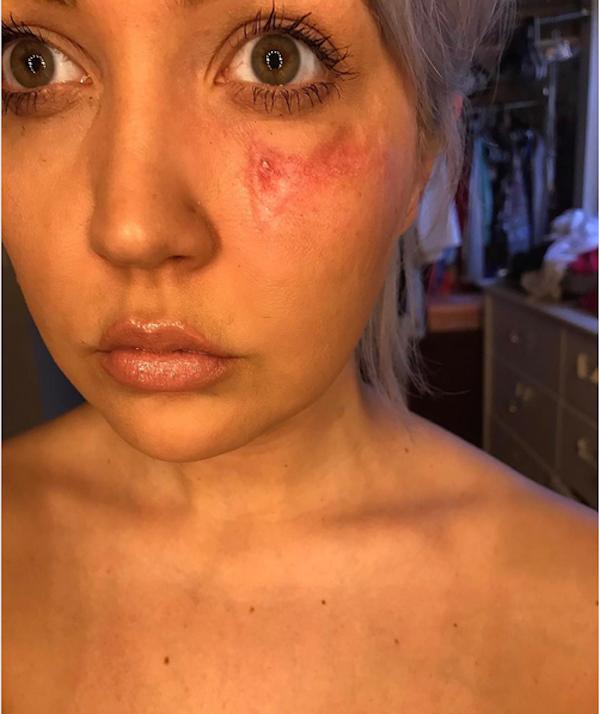 A cantora Meghan Linsey com a ferida decorrente da picada da aranha (Foto: Instagram)