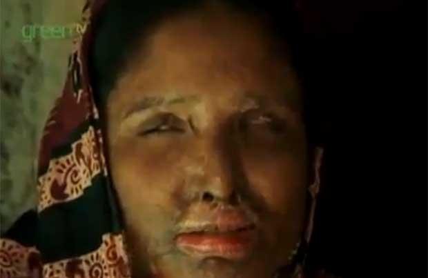 Mulher foi forçada a se casar com o ex-marido, que a atacou com ácido (Foto: Reprodução)