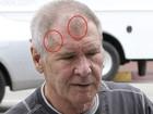Harrison Ford exibe marcas do acidente que sofreu em março