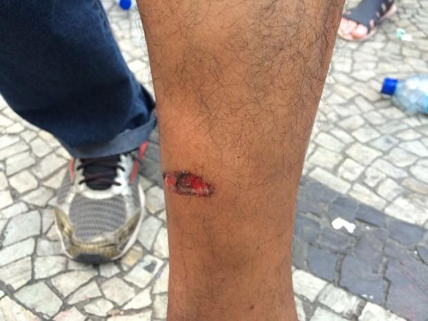 Servidor afirma que ficou ferido com estilhaço de bomba (Foto: Matheus Rodrigues/G1)