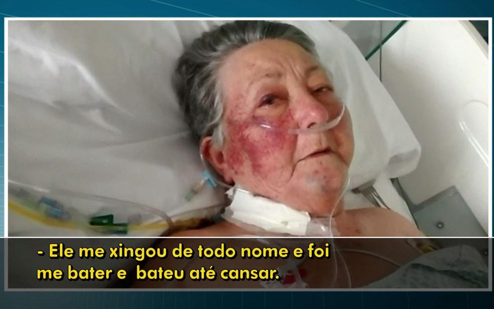 Paciente relata ter sido agredida por enfermeiro do Hospital do Servidor Público Municipal (Foto: TV Globo/Reprodução)