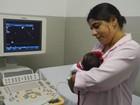 Cidades do Sertão de PE têm dois casos a mais de microcefalia