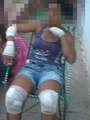 Mulher teve ferimentos leves nos joelhos e mãos (Foto: Alto Santo é Notícia)