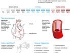 Aceleração cardíaca é preocupante quando ocorre sem o corpo precisar