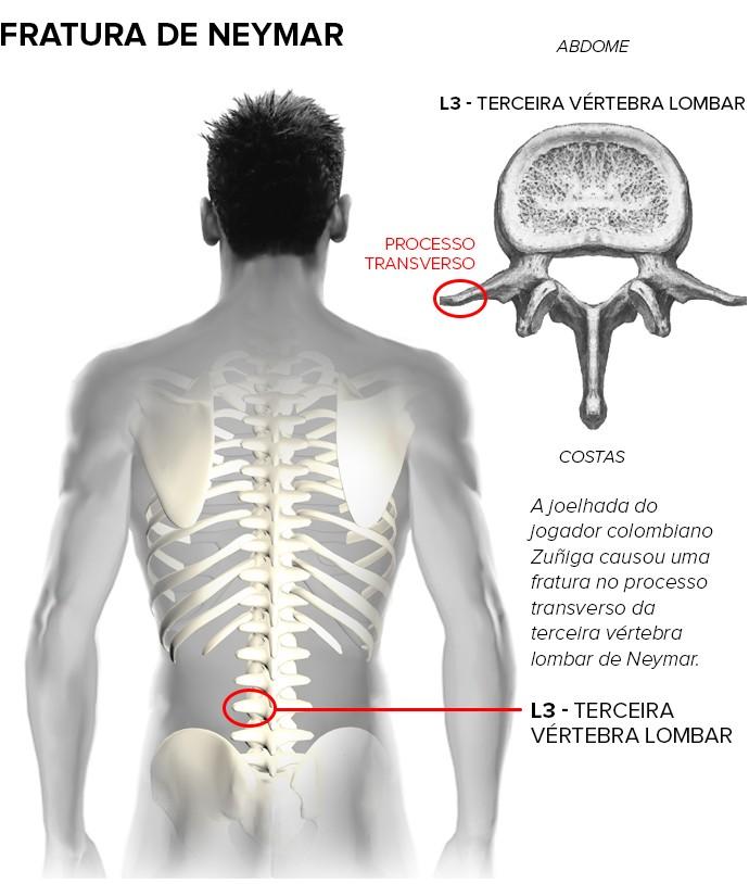 fratura neymar lado esquerdo (Foto: arte esporte)